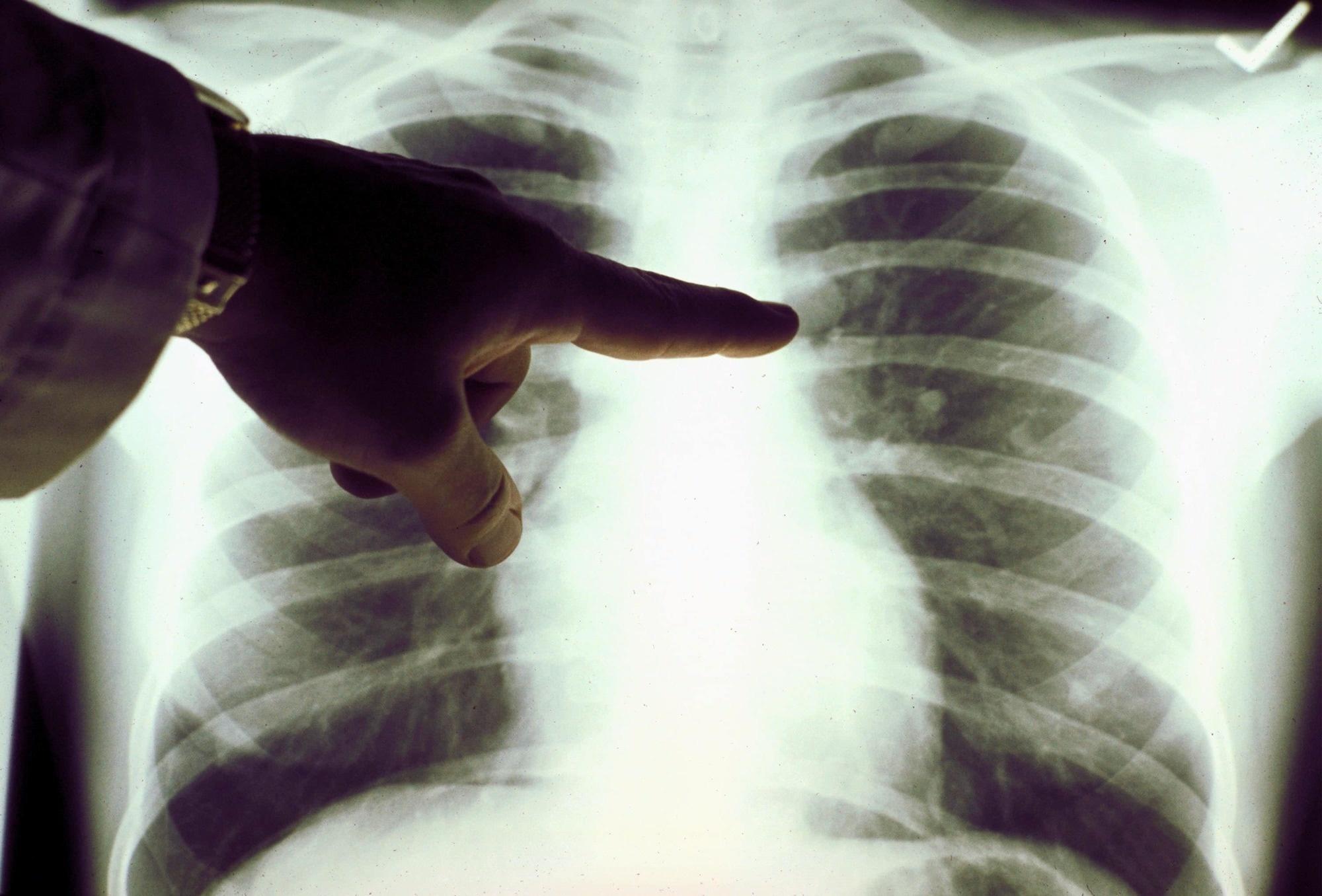 Онкологи: у больных раком больше шансов заразиться коронавирусом